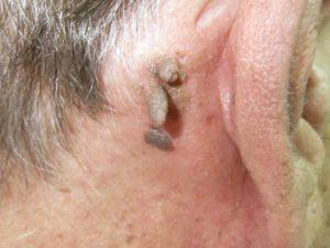 Себорейный кератоз на шее в форме висячей родинки.