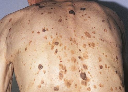 Вирус папилломы человека шейки матки причины появления