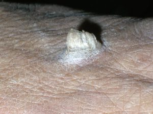 На фото нарост кожи руки - кожный рог.