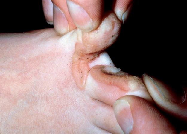 между пальцами ног нарост фото