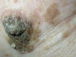 Себорейный кератоз - коричневые наросты на коже фото.