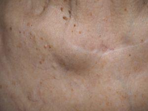 Шишка под кожей тела на фото - остеоартроз.
