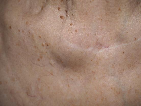 шишки на теле при онкологии фото