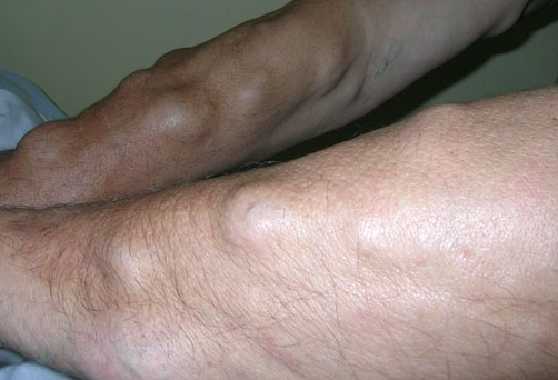 болит кожа на ладони