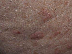 Папилломы на шее лечение