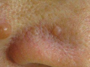 Папилломы телесного цвета на лице - фото невусы
