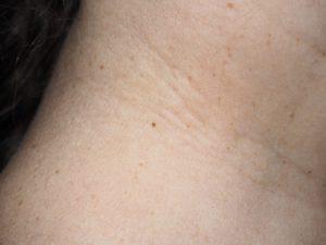 От чего папилломы на шее