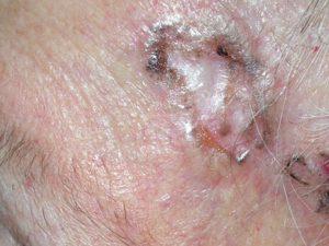 На фото симптомы рака кожи - склерозирующая базалиома