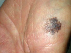 На фото акральная лентигинозная меланома в виде пятна с неровными контурами и неравномерной окраской.