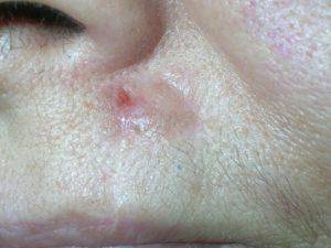 Рак кожи типа базальноклеточного выглядит как шишечка телесной окраски.