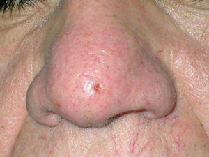 На фото базальноклеточный рак кожи язвенной разновидности на ранней стадии похож на царапину.