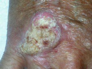 Шишка с шершавой поверхностью - так выглядит плоскоклеточный ороговевающий рак.
