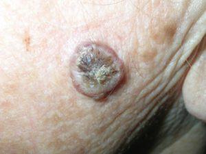 Плоскоклеточный рак кожи на фото из кератоакантомы.