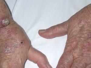 На фото плоскоклеточный рак кожи начальной стадии.