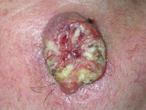 На фото плоскоклеточный рак кожи, начальная стадия.