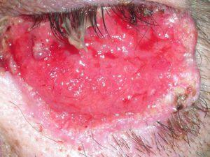 На фото плоскоклеточный рак кожи в области нижнего века.