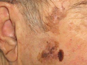 Рак кожи начальной стадии - лентиго-меланома на фото.