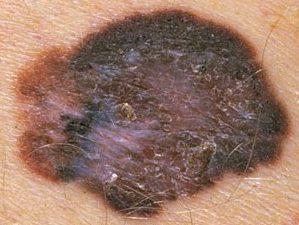 Поверхностная меланома кожи на фото.
