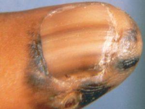 На фото полосы на ногте - акральная меланома.