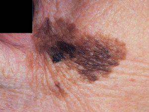 На фото меланома кожи поверхностная и лентигинозная.