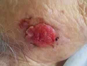 На фото рак кожи на лице плоскоклеточный неороговевающий.