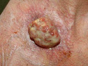 На фото меланома 4 стадии - большой нарост желто-розового цвета.