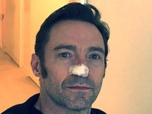 Хью Джекман последние новости фото рак кожи.